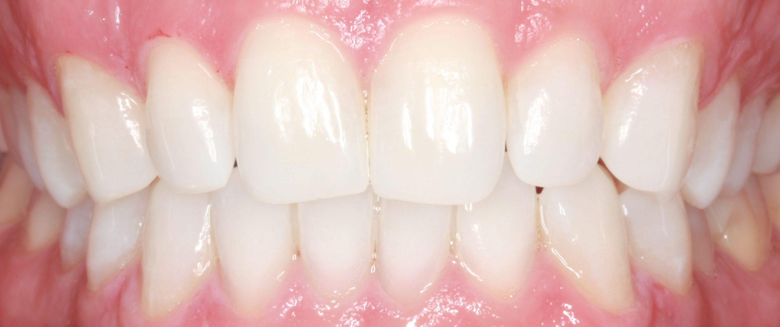 Tractament d'estètica emblanquiment dental. Clínica dental Padrós, dentista a Barcelona