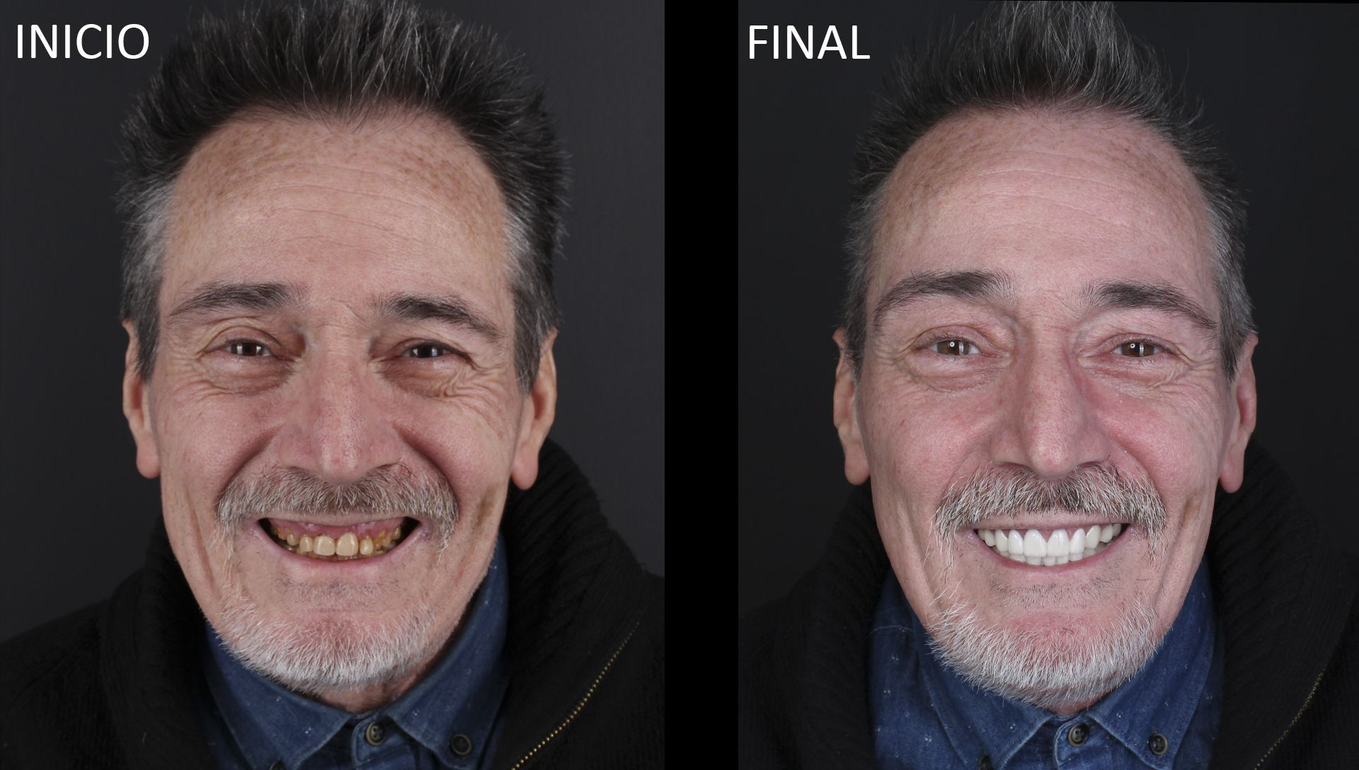 Abans i després del tractament de pròtesis dentals