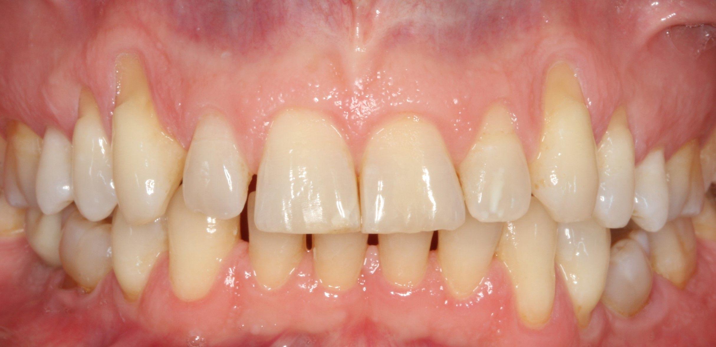 Abans del tractament de genives retretes mitjançant la tècnica Pinhole