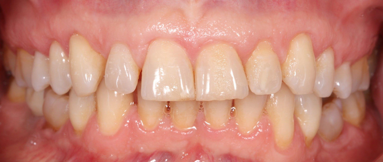Després del tractament de genives retretes mitjançant la tècnica Pinhole