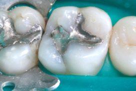 Tractament d'eliminació d'amalgames, antics empastaments metàl·lics en clínica dental Padrós. El teu dentista a Barcelona