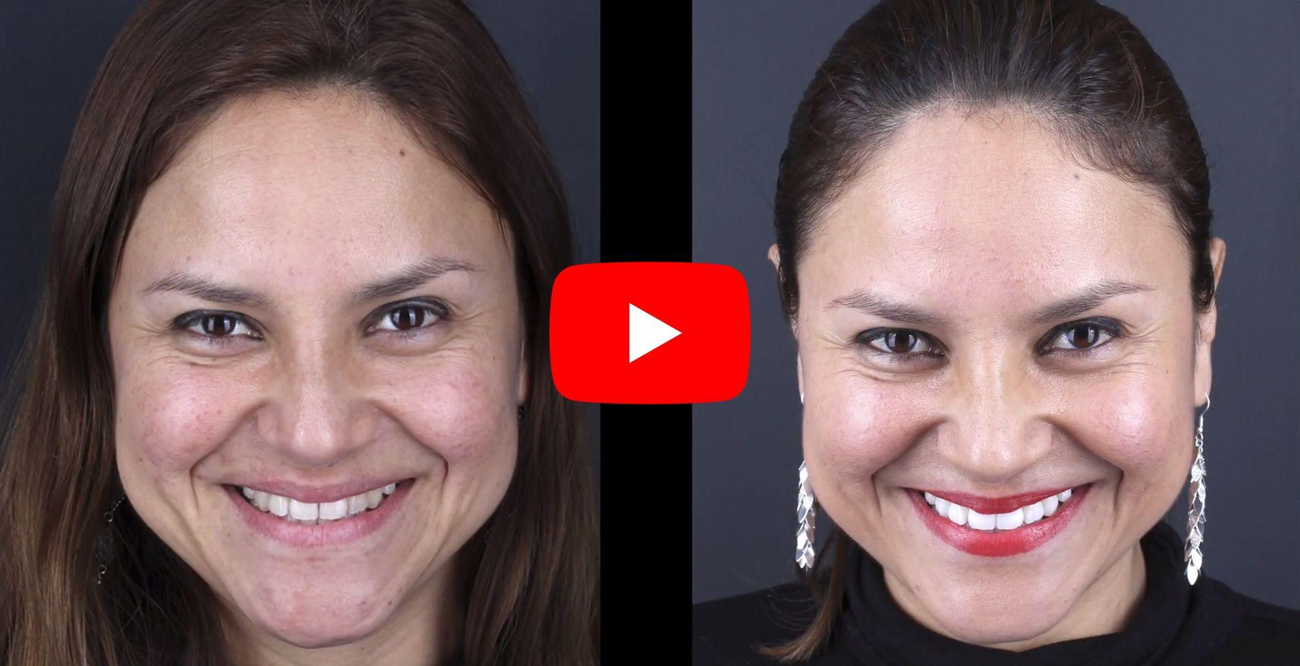 Vídeo testimonis dels pacients tractats a clínica Padrós de blanquejament dental