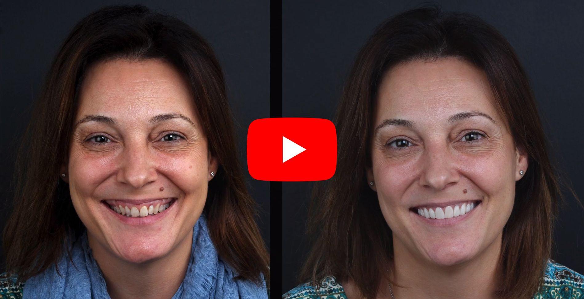 Vídeo testimonis dels pacients tractats en clínica Padrós de carilles dentals