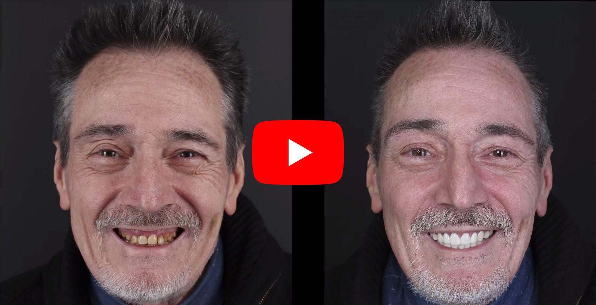 Vídeo testimonis dels pacients tractats en clínica Padrós d'estètica dental