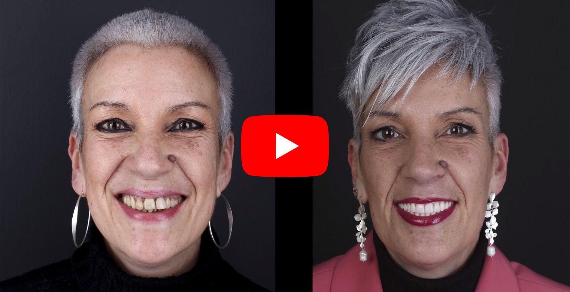 Vídeo testimonis dels pacients tractats a clínica Padrós d'implants dentals