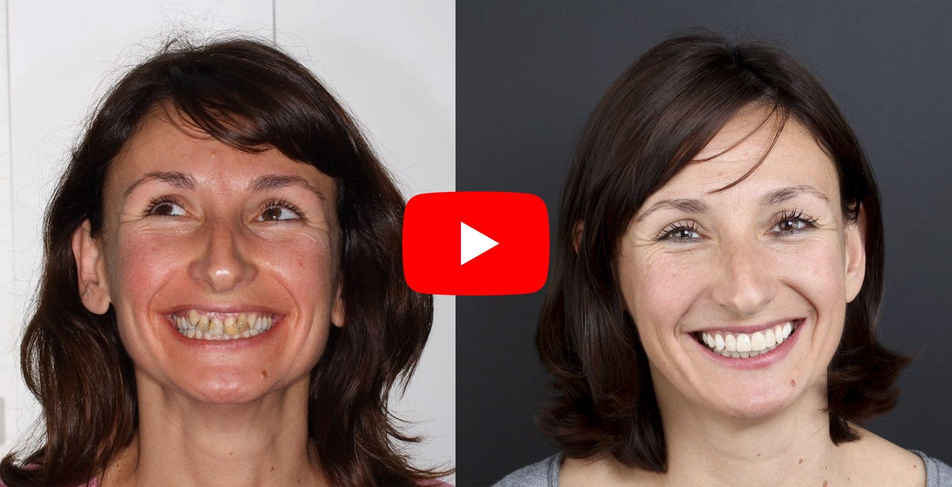 Vídeo testimonis dels pacients tractats a clínica Padrós d'ortodòncia