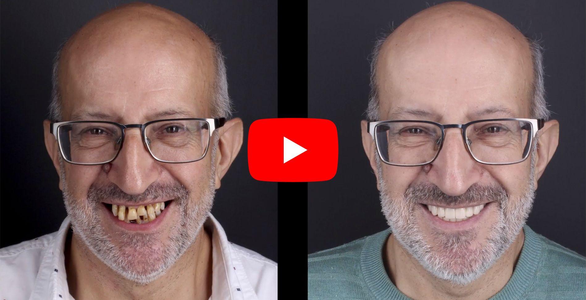 Vídeo testimonis dels pacients tractats a clínica Padrós de pròtesis dentals
