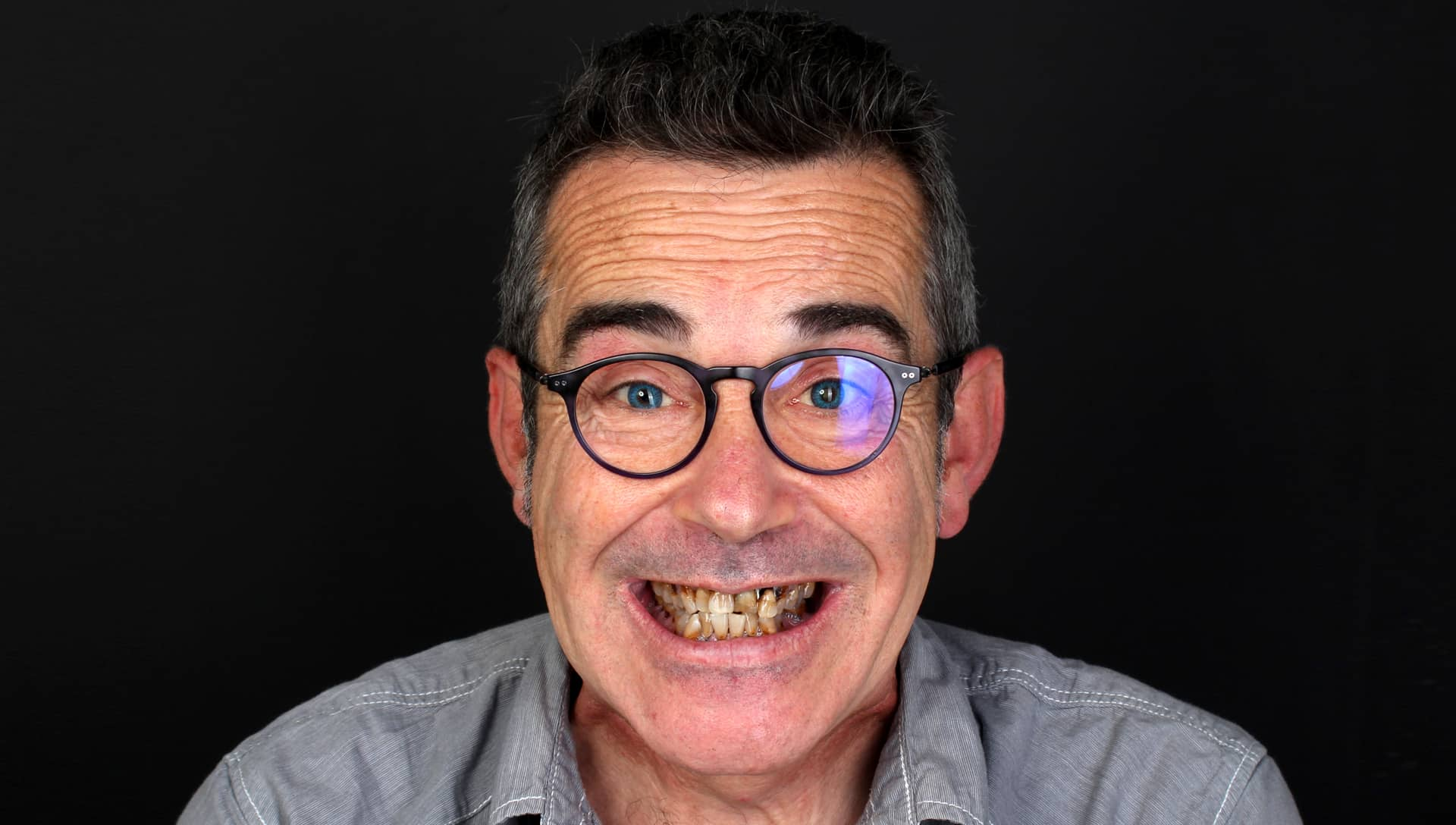 Jose Luis abans del tractament d'estètica dental i pròtesi dentals
