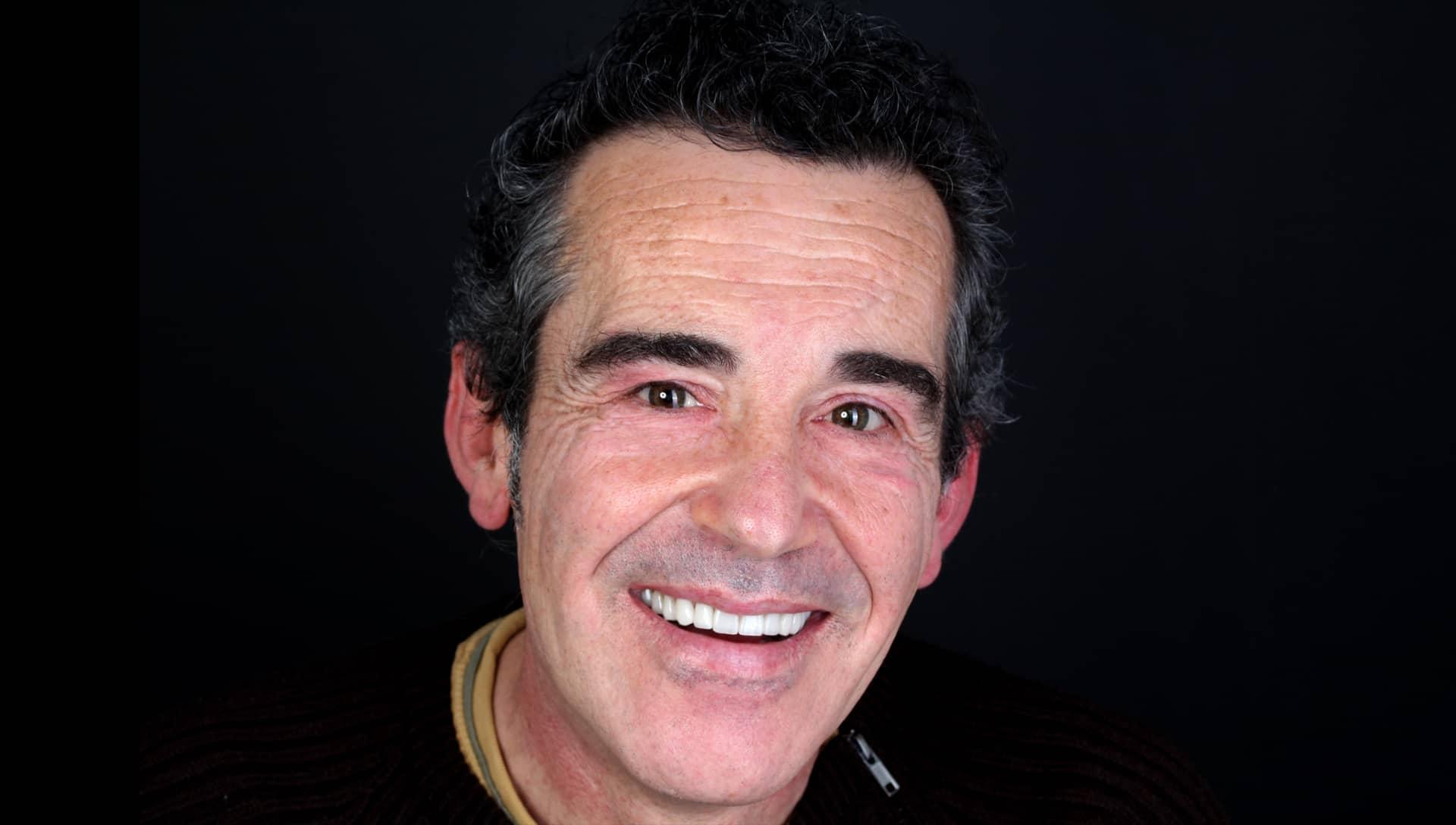 Jose Luis després del tractament d'estètica dental i pròtesi dentals